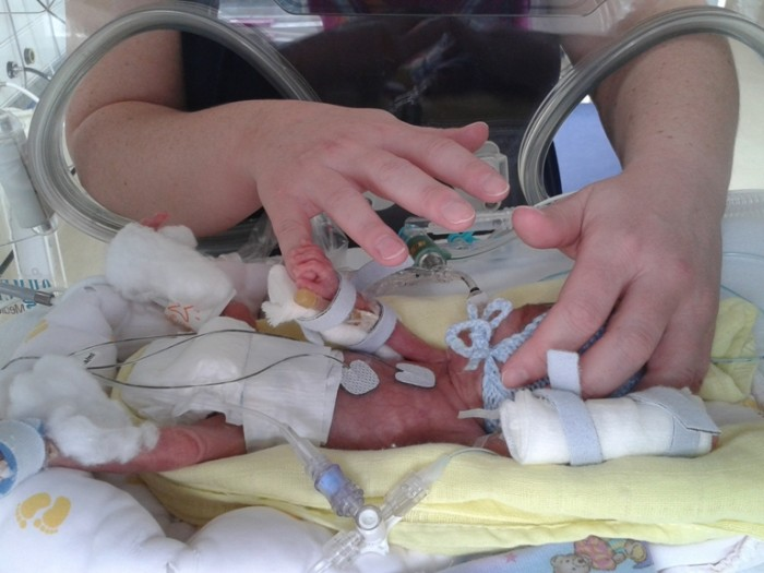 Baby Hugo incubator